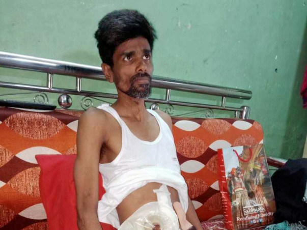 Help Rajesh Undergo A Colon Removal Surgery