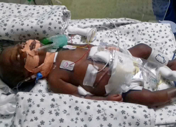 Jayalxmi's 5 month old baby is struggling to survive and needs help