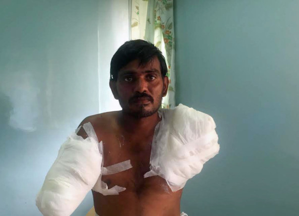 Help Rama Subahiah to undergo treatment for his burnt hands.