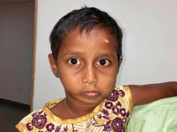 Help Deepa Who Requires A Jaw Surgery To Open Her Mouth