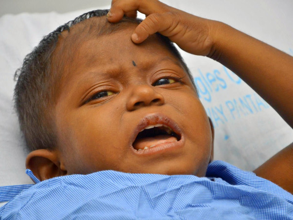 Help 4-Year-Old Who Scratches Skin and Pulls Hair Out In Pain