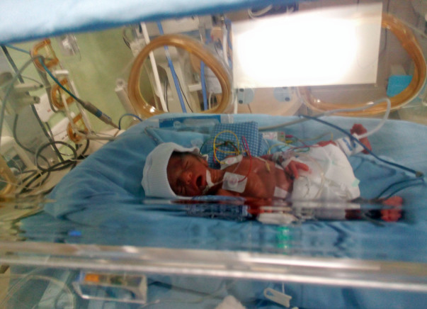 This Premature Baby Requires Your Support to Beat Death