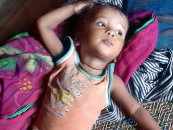 Help Hari Om Undergo A Liver Transplant