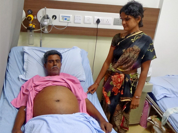 Help Laksmi Narayana Undergo A Liver Transplant