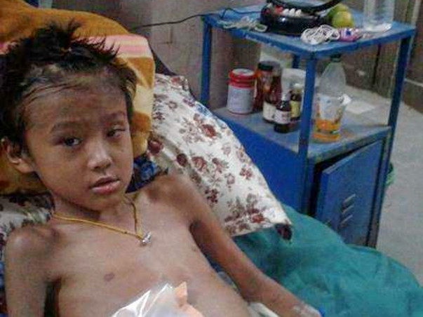 Help this 8 year old brave boy from losing his leg to gangrene