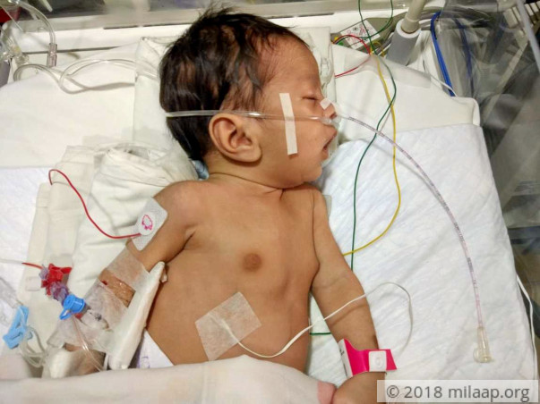 Farmer's 1-Month-Old Baby Needs A Life-Saving Heart Surgery Tomorrow