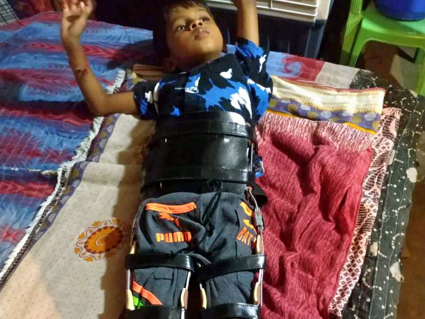 Support 5 years old Stephan who met with an accident and is paralyzed.