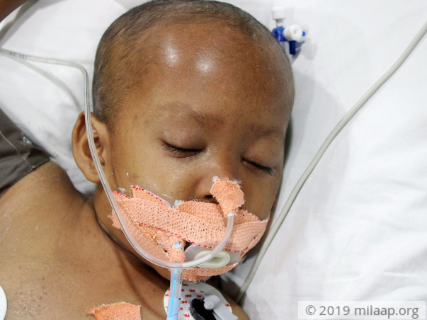 Partially Blind 5-Year-Old Needs ICU Stay To Recover From Infections