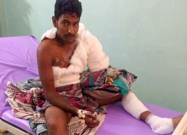 Help For Suresh's Surgery - Accidental Current shock - Kakinada