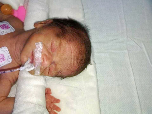 Need help!! To save ur little angles twins  in critical condition