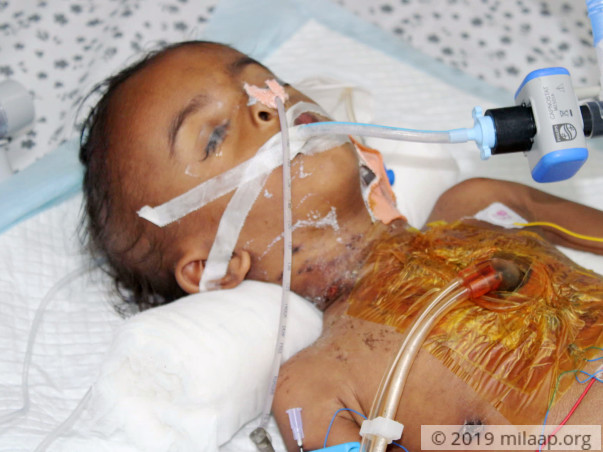 Help Naresh Recover From Congenital Heart Disease