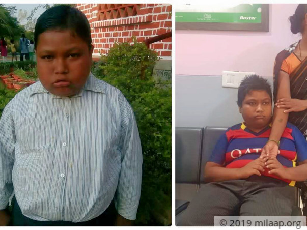 Help Pankaj Kumar Fight Bardet Biedl Syndrome