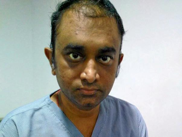 Help Mayur Harilal Patel(Age 35) for Urgent Bone marrow transplant