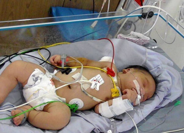 Help These Parents Save The Life Of Their New Born Baby