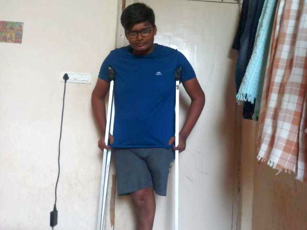 Help Me To Get Artificial Leg