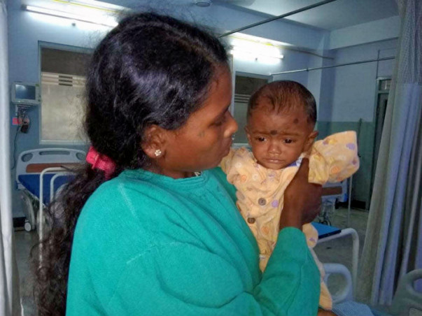 Tea Picker's 7-Month-Old Needs Urgent Surgery To Survive Heart Disease