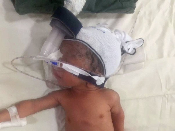 Help Baby Of Neha Recover From Ecoli Septicemia