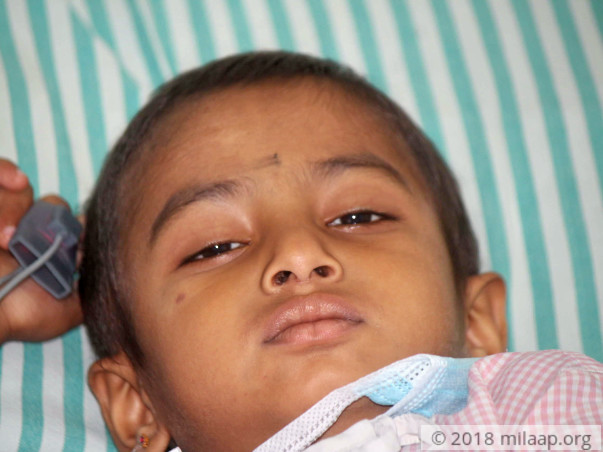 4-year-old Is In Constant Pain Due To A Dreadful Cancer