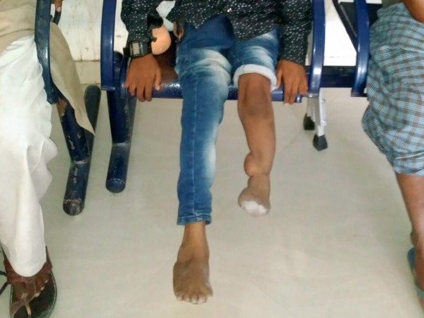 Help for disabled people to provide artificial leg,caliper, food free