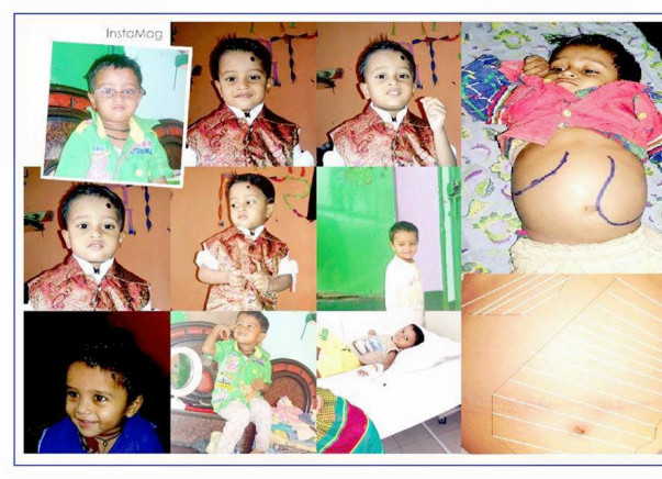 Help Ayush Fight A Rare Genetic Disorder - Gaucher Type 3