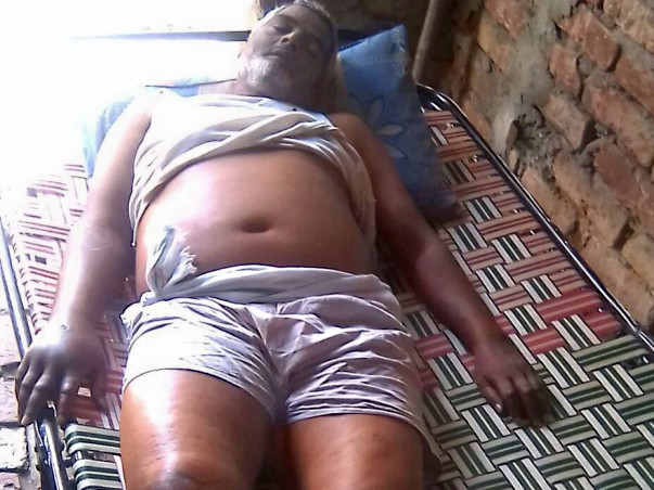 Poor Man On Verge Of Death Due To A Stomach Tumor Needs Your Help