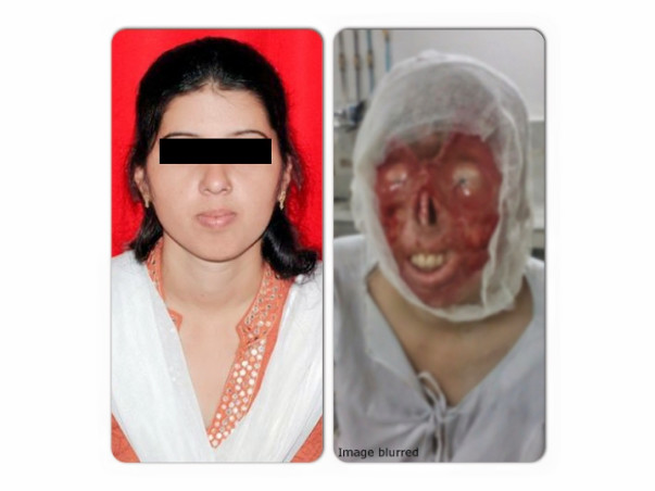 We are fundraising to help acid attack survivor Deepmala get medical treatment. Join our cause!