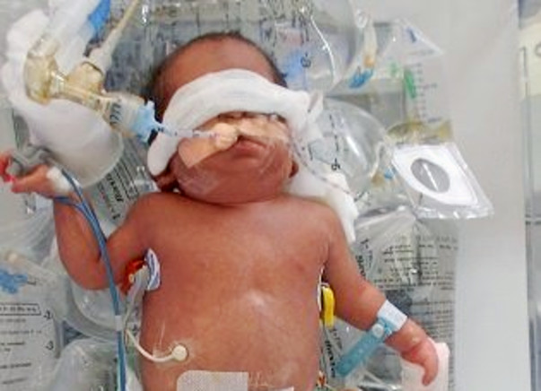 Help Asma's Premie Baby Get More Time To Fight And Survive