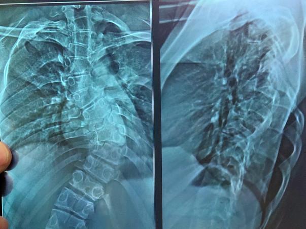 Help Tejashwini Undergo Spinal Cord Operation