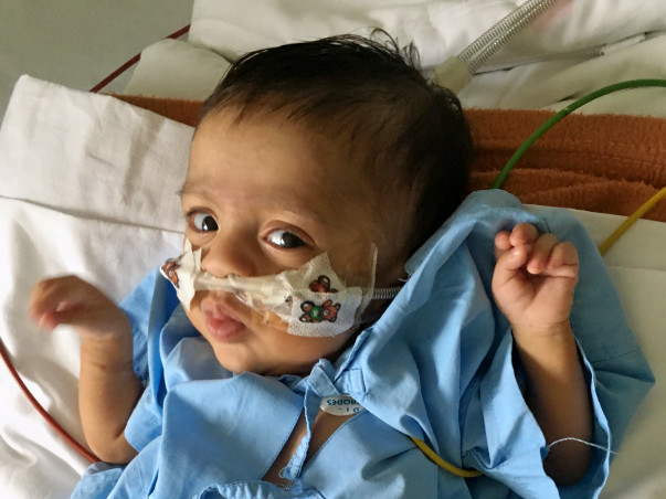 Save Baby Ashwanth From Chronic Lung Disease