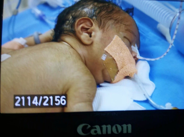 Baby Of Lakshmi Devi needs your help to survive