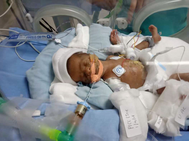 Help my premature baby who is struggling in ICU