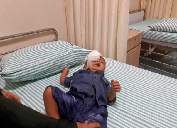 Help Yaseen undergo a surgery
