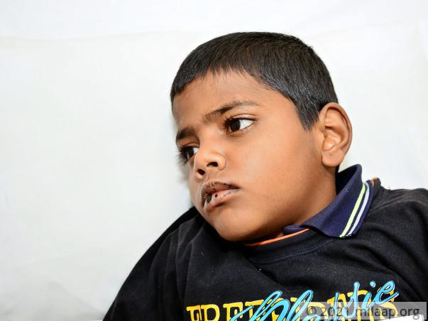 Mohit needs your help to undergo his treatment