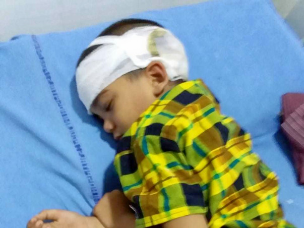 Help mahesh for brain surgery