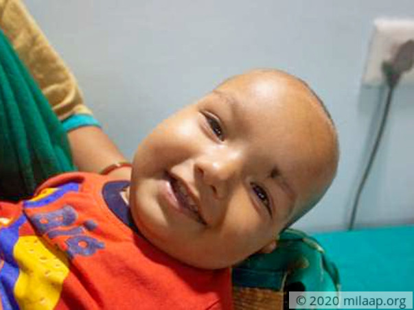 9-Month-Old Whose Breathlessness Doesn't Let Him Sleep Beyond 15 Mins
