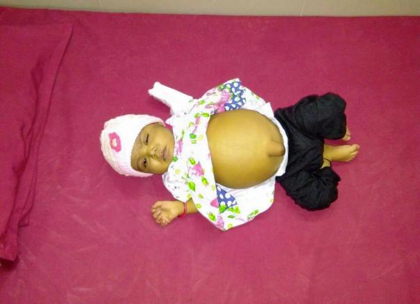 Help Baby Tahoora Begum Undergo A Liver Transplant