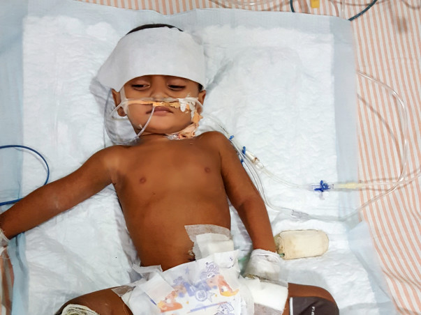 This 1-Year-Old's Hands And Legs Will Be Amputated Because Of Gangrene