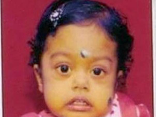 Help Baby Aaradhya  to undergo Liver transplant surgery