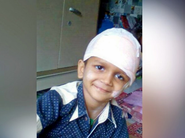Help Durva Undergo A Crucial Brain Surgery
