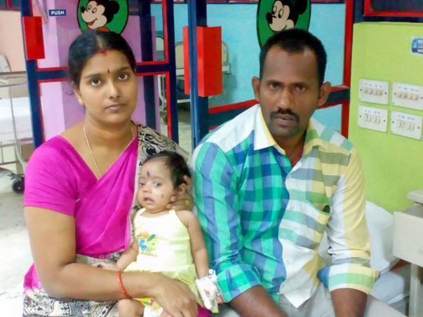 3-month-old Varsha has been fighting a heart disease since birth