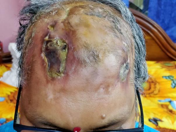 Help Rashmirekha Fight Brain Tumor