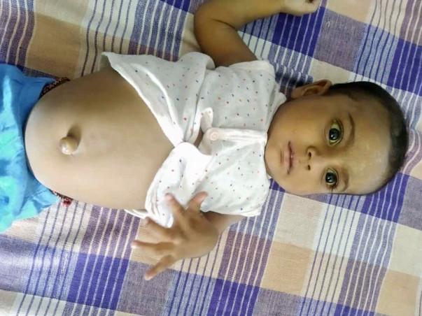 Help 6-Months Old Johanty Undergo Liver Transplant.