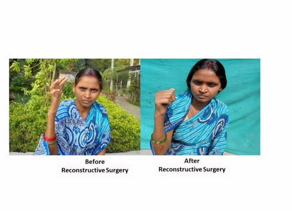 Reconstructive surgery to address deformities in women