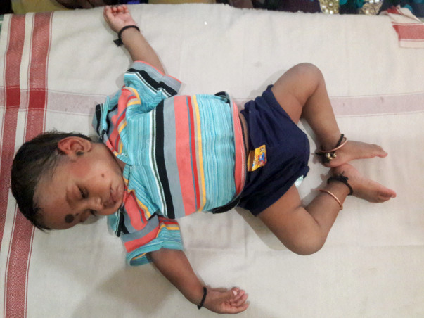 Baby Vignesh has suffered from intestinal disease since birth