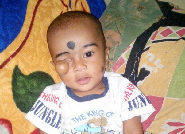 This 10-month-old's Survival Depends On An Open Heart Surgery