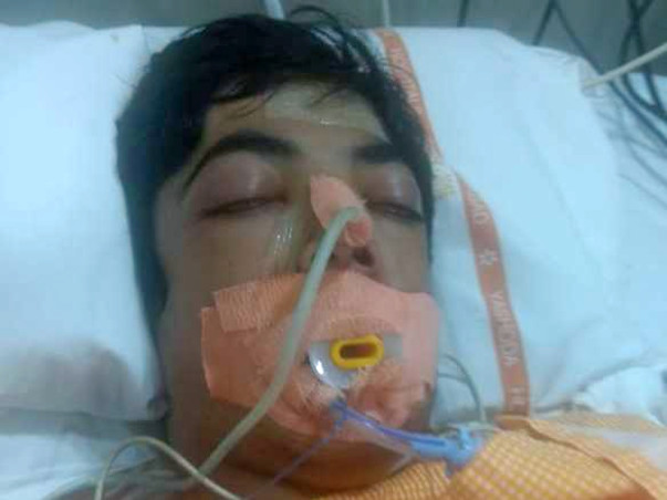 Help 14 Year Old Dhaval Save His Life From Multiple Organ Failure
