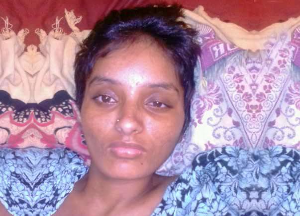 Help Swathi to fight Neuromyelitis Optica(NMO)