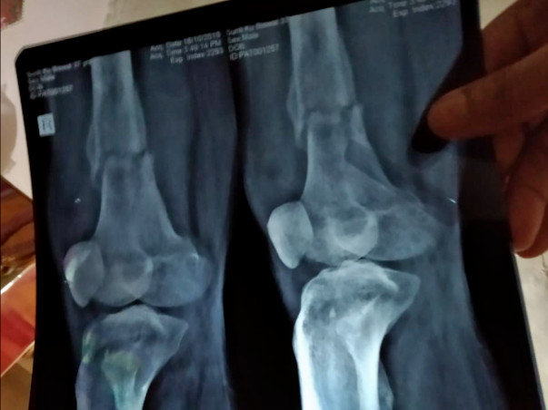 Help to Prevent  Bone Cancer in 4th Stage