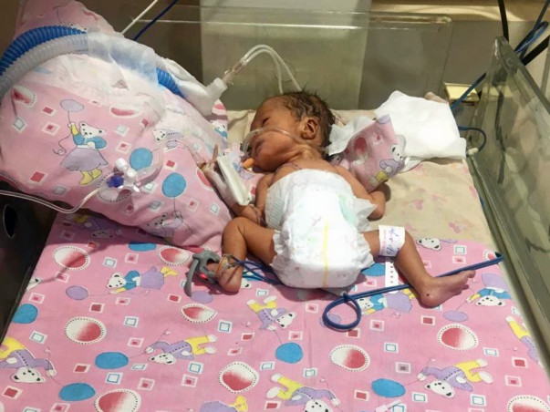 1-month-old Babyanshika Dubey Needs Your Help Fight Ventilator-associated Pneumonia