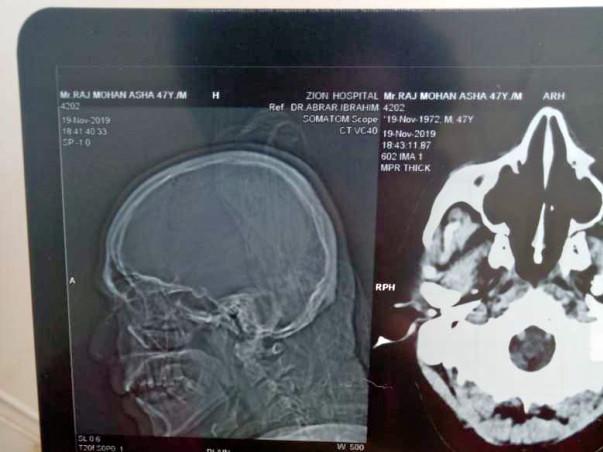 Help My Friend Rajmohan Fight Brain Haemorrhage